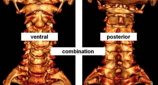 listhesis spine treatment