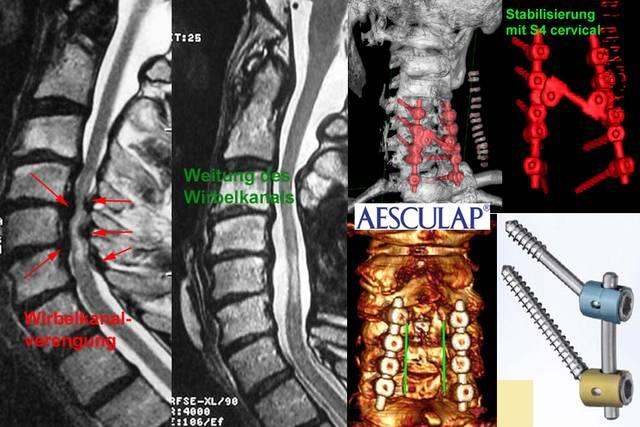 ligamentum flavum hypertrophie