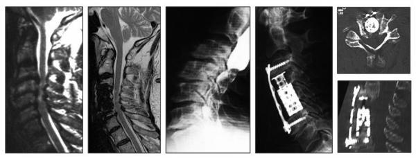 Wie sakatschat den Hals bei der Osteochondrose Videos