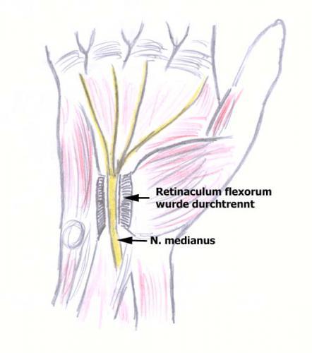 nerve compression syndrome #11
